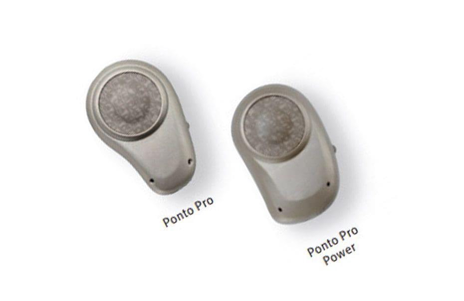 implant ponto